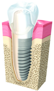 Dee Why Dental Implants